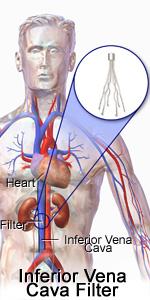 dr rajesh vascular surgeon  vascular  endovascular surgery